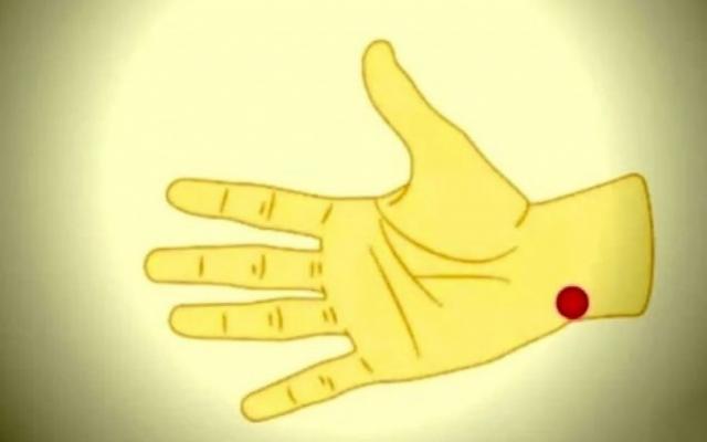 Артроза на пръстите на ръката